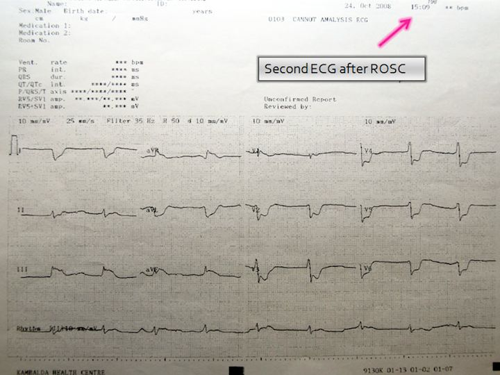 ECG at 3:09 pm, shortly after Sherry prayed for him, and his heartbeat returned.