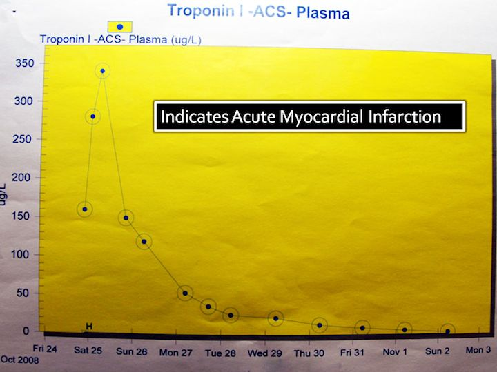 Indication of acute myocardial infarction (= heart attack) during 25th October.