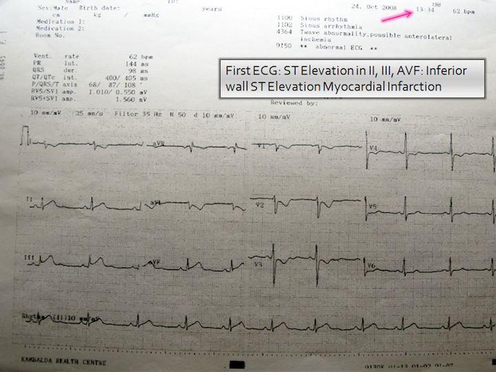 Initial ECG chart, 1:34 pm.