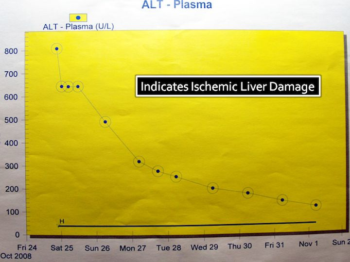 Graph of liver function, showing significant damage on 25th October.